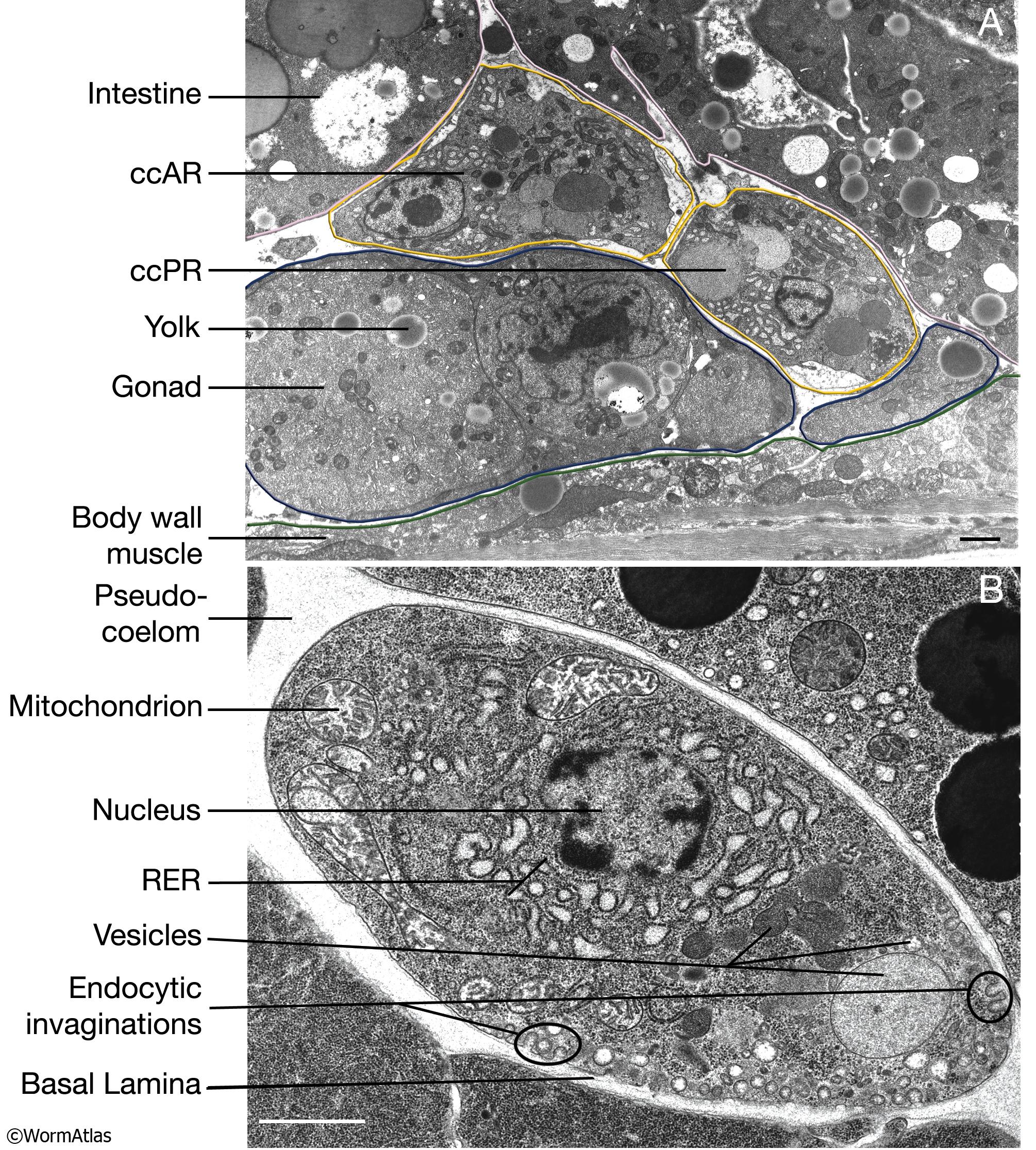 Lysosome Micrograph