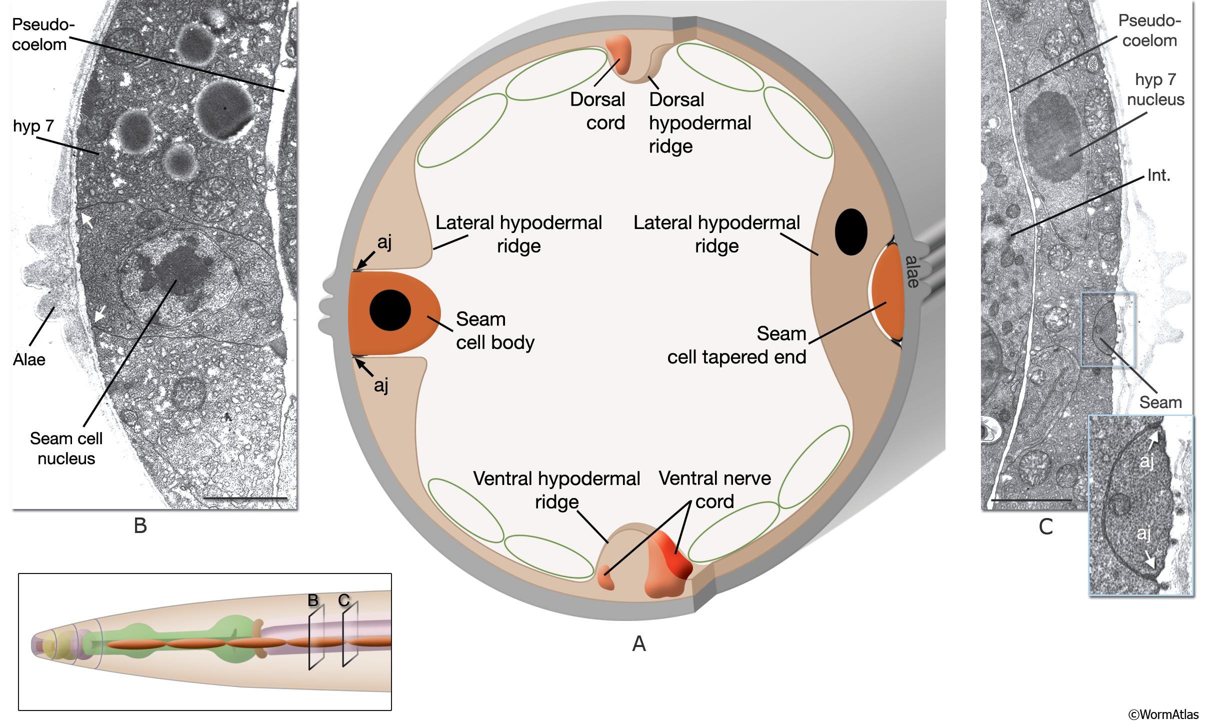 Hermaphrodite - Epithelial System - Seam Cells
